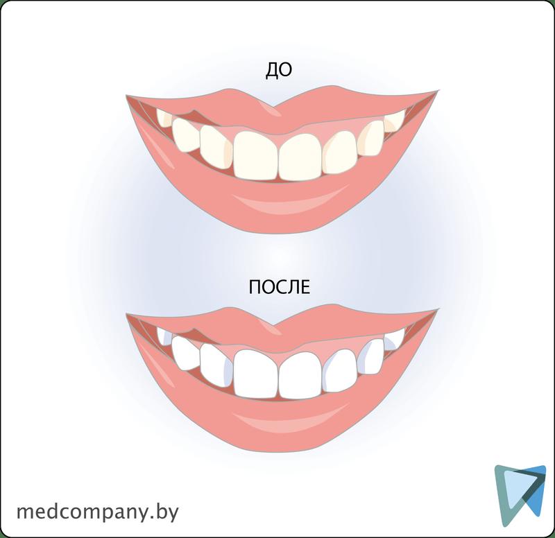 отбеливание зубов в иркутске элит дентал